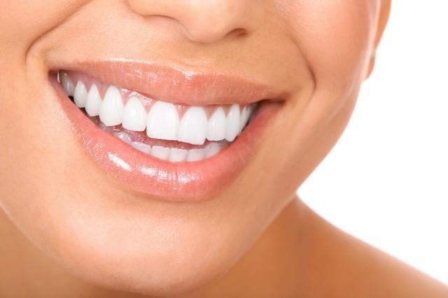 dentes amarelos 1
