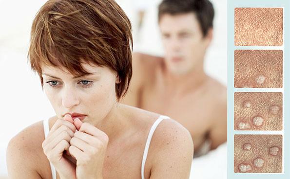 Devo me preocupar com verrugas genitais - blog pitacos e achados a