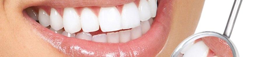 Mitos e verdades sobre o uso de lentes de contato dentais - pitacos e achados 1